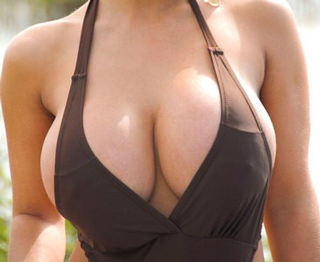 I-have-to-redo-the-breast-how-much-does-plastic-surgery-image-4
