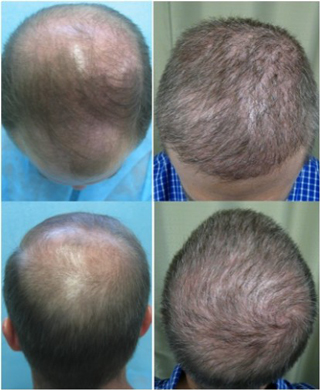 Baldness-remedies-cures-for-hair-loss-with-new-transplant-photo-1