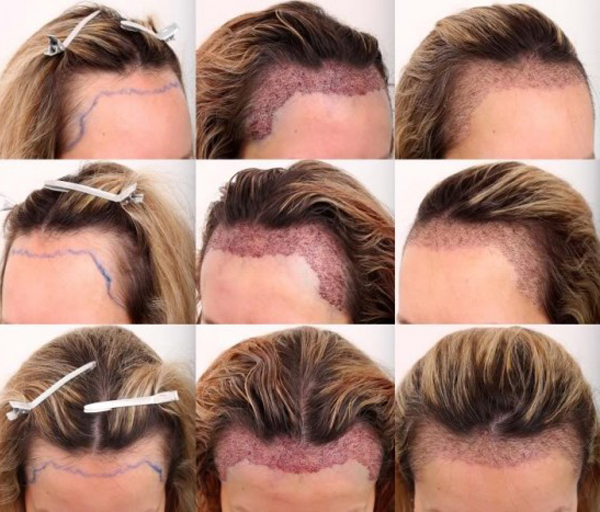 Baldness-remedies-cures-for-hair-loss-with-new-transplant-photo-12