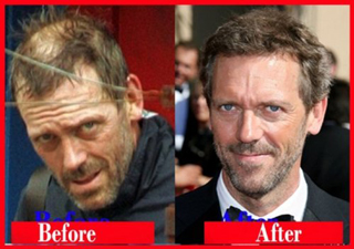 Baldness-remedies-cures-for-hair-loss-with-new-transplant-photo-4