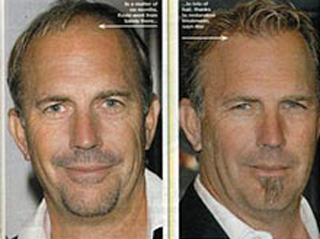 Baldness-remedies-cures-for-hair-loss-with-new-transplant-photo-7