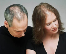 Baldness-remedies-cures-for-hair-loss-with-new-transplant-photo