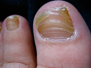 Cure-toenails-mycosis-remedies-treatments-beauty-wellness-image-2