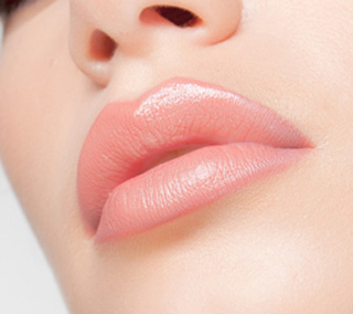 Increasing volume of the lips without wrinkles with Botox and fillers