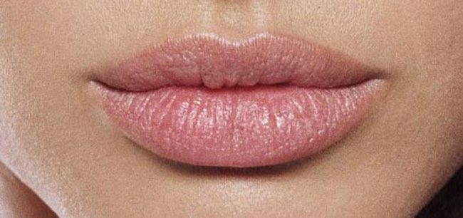 Increasing volume of the lips with Botox and fillers