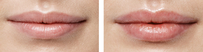 Increasing volume of the lips without wrinkles with Botox